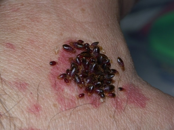 Symptoms and Treatments of Bed Bug Bites (1)