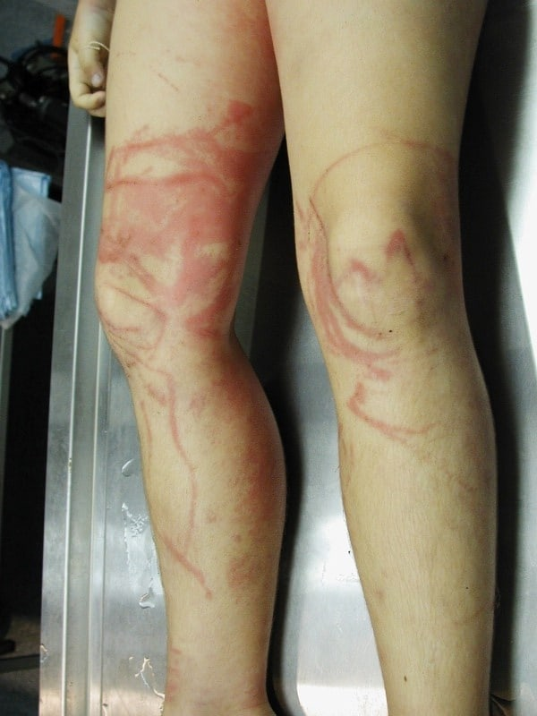 Jellyfish sting symptoms and treatment